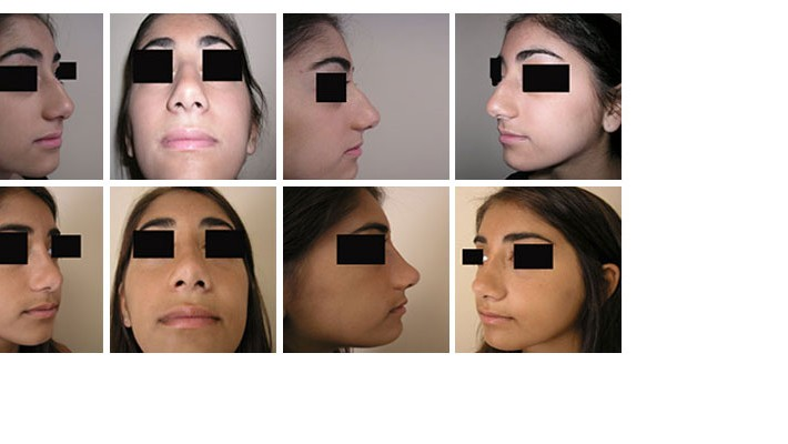 See what your nose may look like BEFORE surgery!